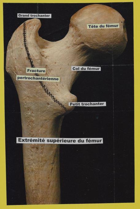 extremite-sup-du-femur